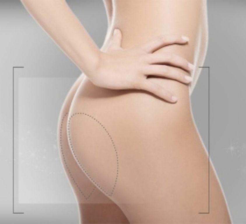 Implante de Glúteos